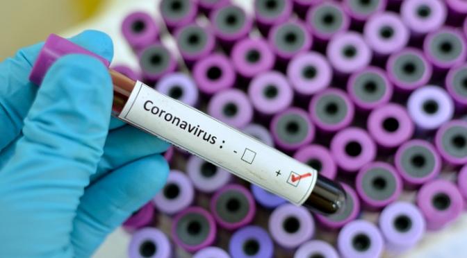 78 nuevos casos positivos de COVID-19  y un ingreso en las últimas horas en Navarra