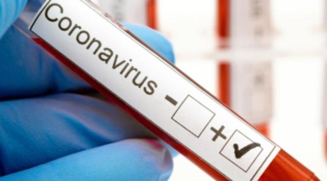 2.360 navarr@s participaran en el estudio epidemiológico dirigido por el Ministerio de Sanidad