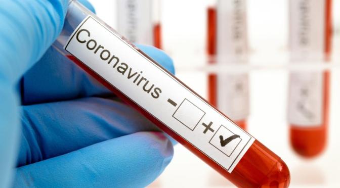 Un 6,4% del porcentaje de población navarra tiene anticuerpos frente al coronavirus